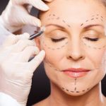 Options to consider About Cosmetic Surgery